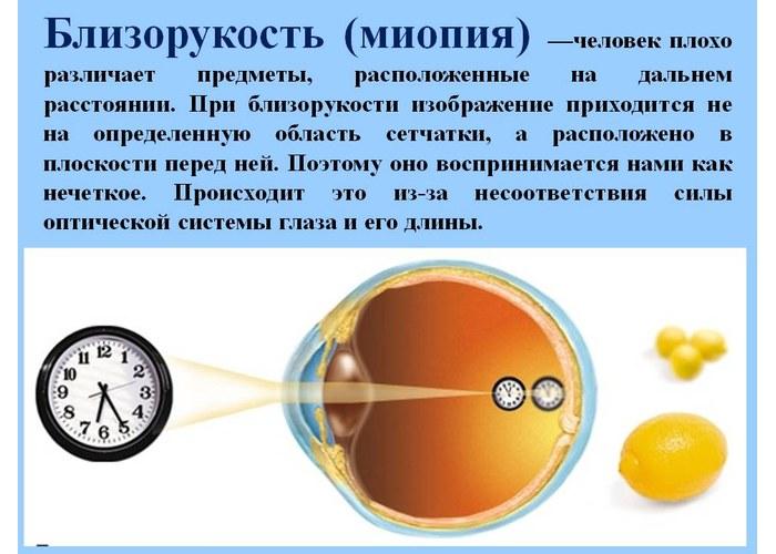 Как улучшить зрение до 1 в домашних условиях